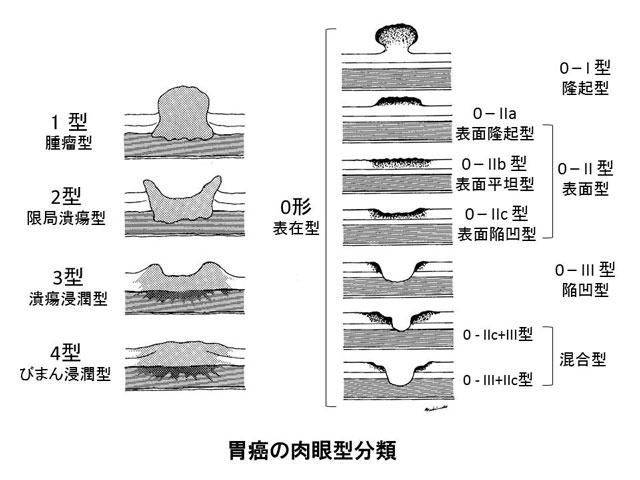 胃癌の肉眼型分類